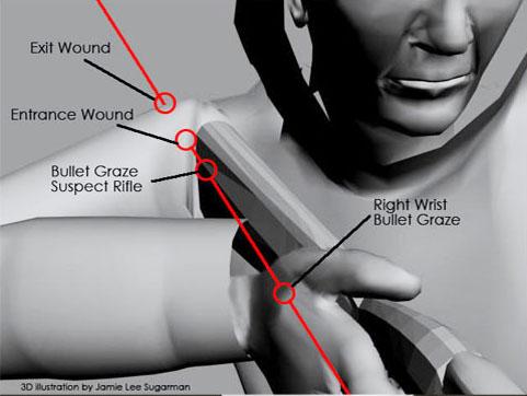 image_2_susp_wound_13.jpg